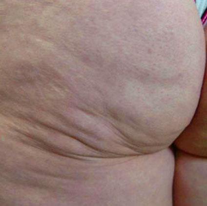 cellulite fat destruction